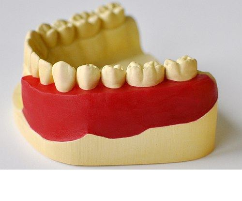 CoCr Partial Denture Waxes
